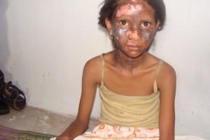 Victim of Kandhamal violence. Credit: Wikimedia