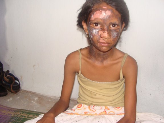 Justice Continues to Elude Victims of Kandhamal Violence