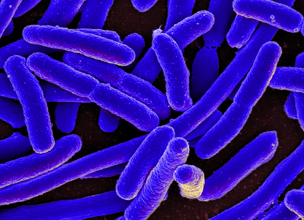 In 5 Years, Threat Of Drug-Resistant Superbugs Doubles