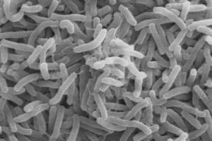 Scanning electron image of Vibrio cholerae. Credit: Wikimedia Commons