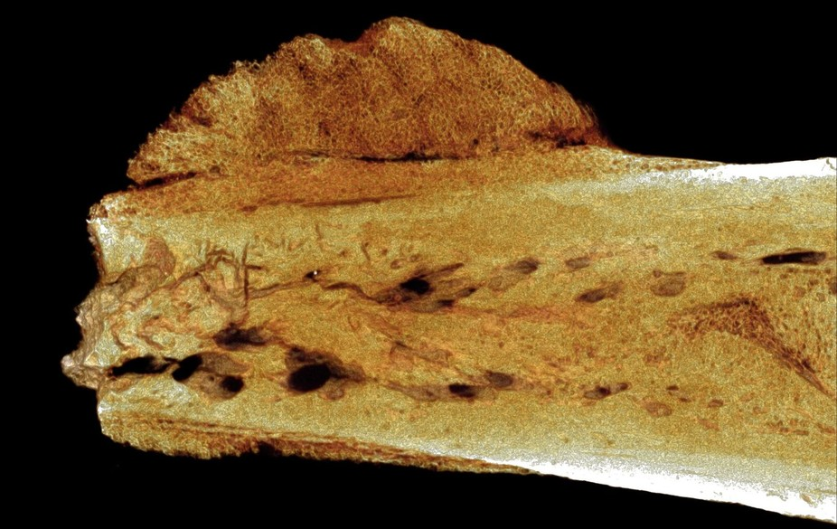 Fossil Evidence Reveals That Cancer Goes Back 1.7 Million Years