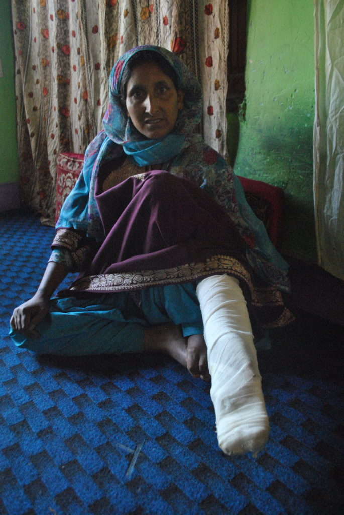 Hazira Begum, was hit by a bullet in her arm when she went to look for her son and protest in the Aripanthan chowk. Credit: Rohini Mohan