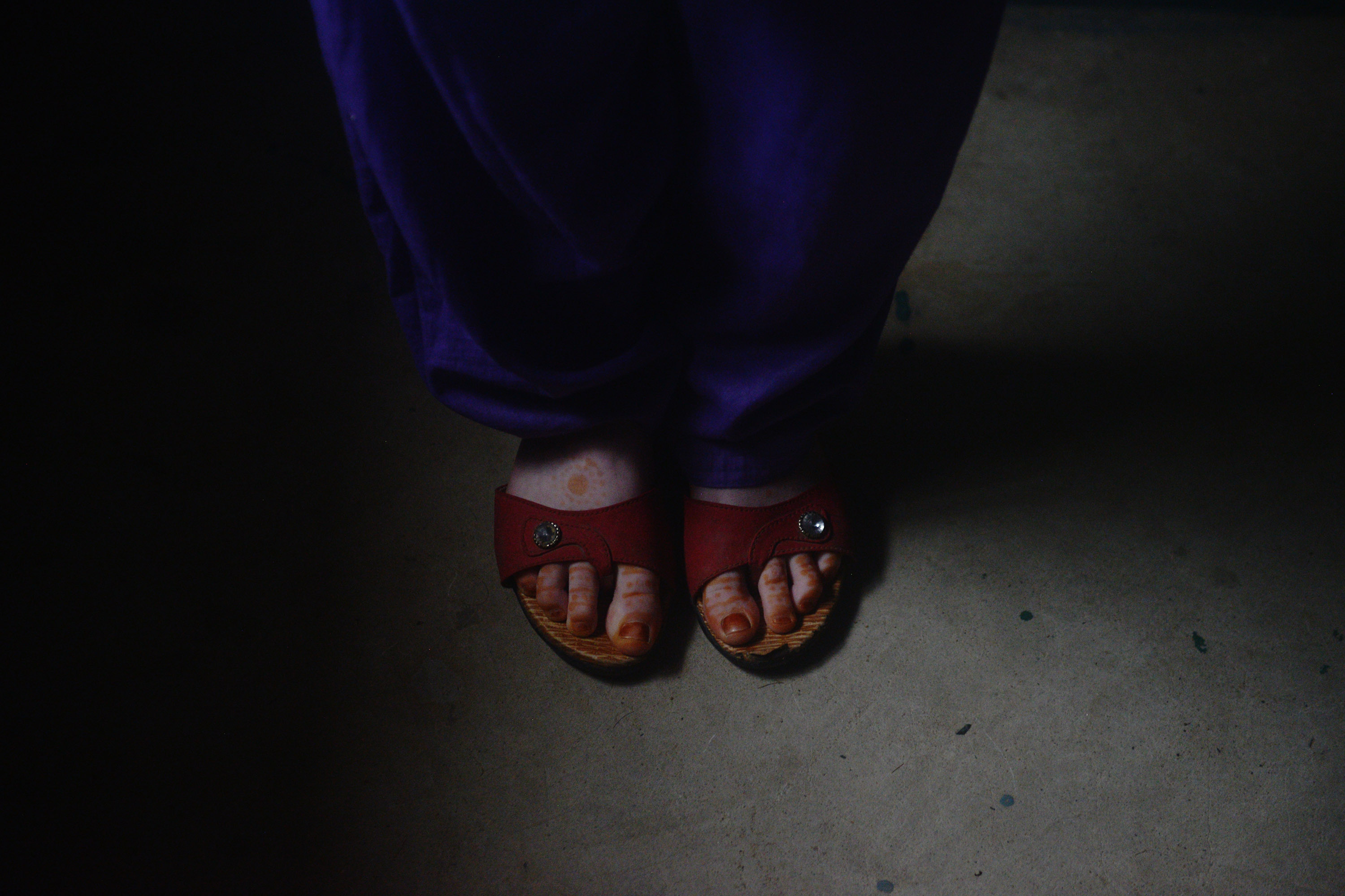 Reema's favorite pair of shoes. She loves the red colour. There are different stages of blindness. In the earlier stages of impartial vision, colours can be recognised. Credit: Sutirtha Chatterjee