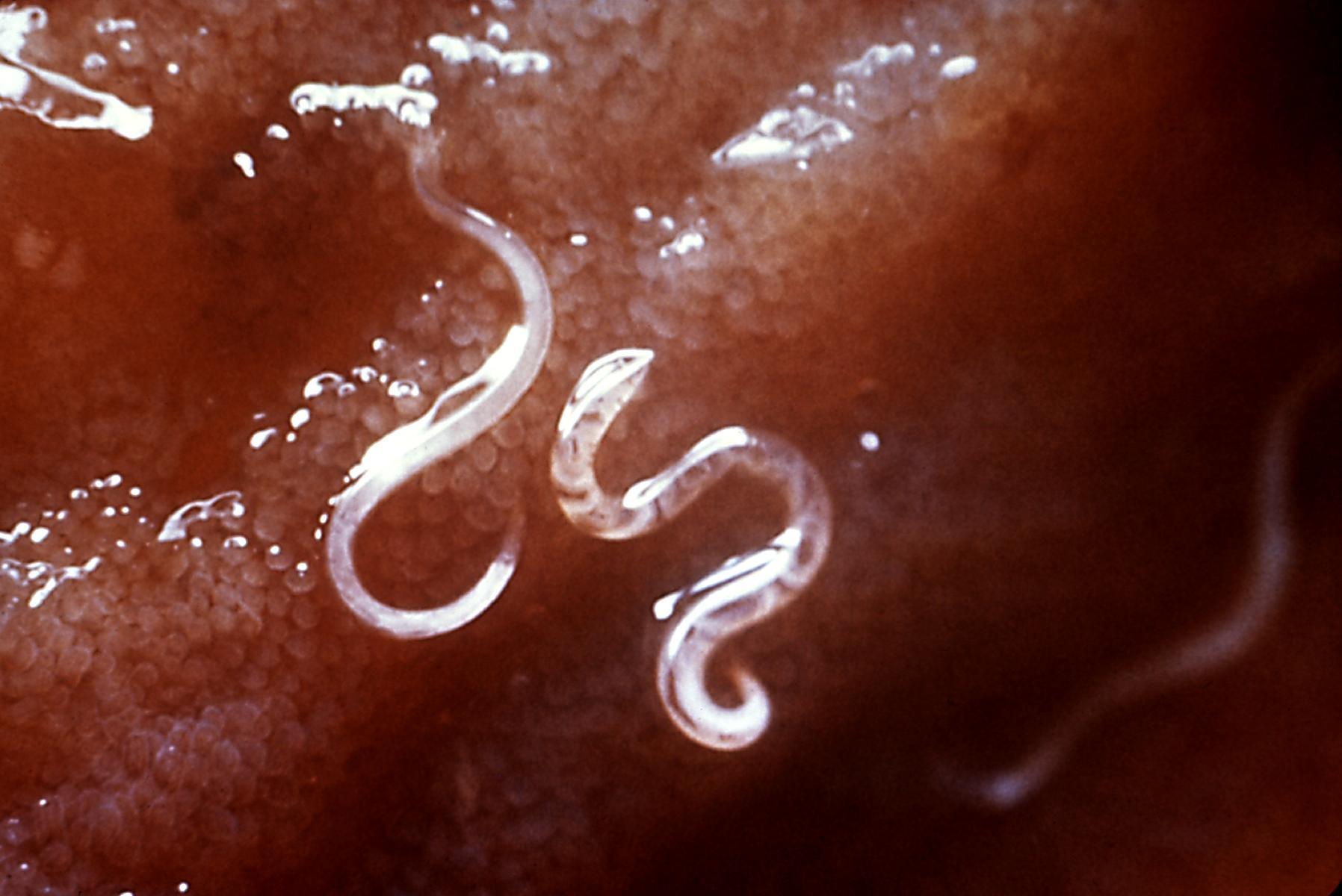 Hookworms. Credit: Wikimedia Commons