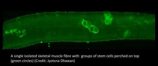 Skeletal muscle fibres. Credit: Jyotsna Dhawan