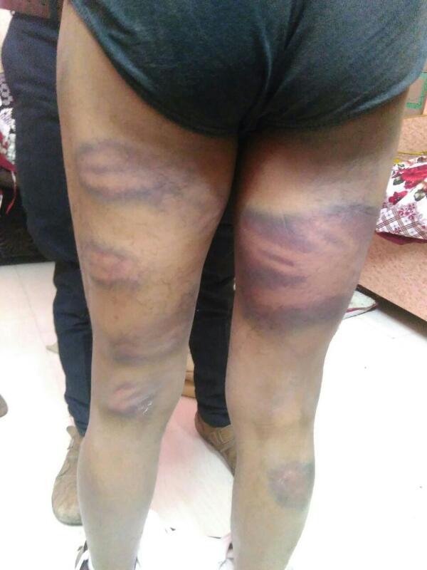 Karimbhai's injuries. Credit: Damayantee Dhar