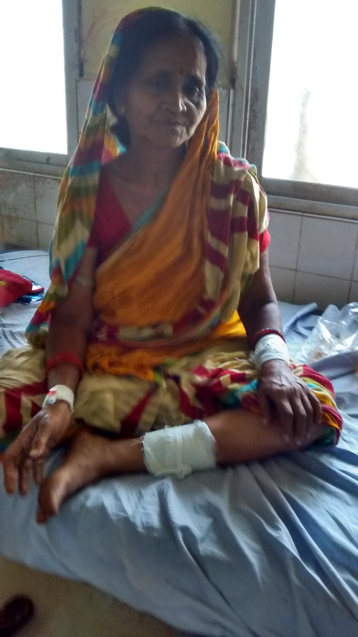 Basanti Palai, injured in the attack. Credit: Ranjana Padhi