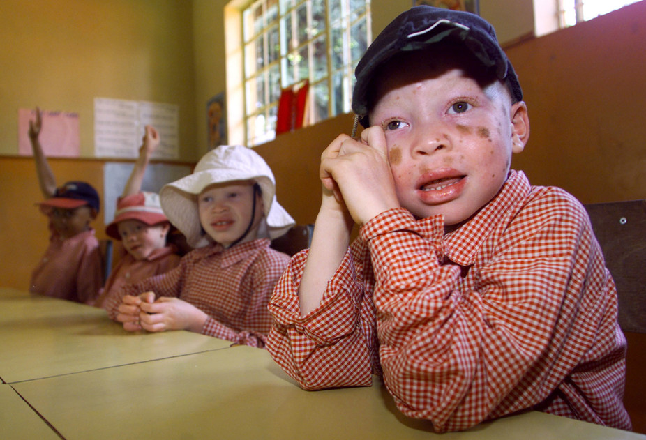 How the Media Can Help Protect People With Albinism – a Tanzanian Case Study