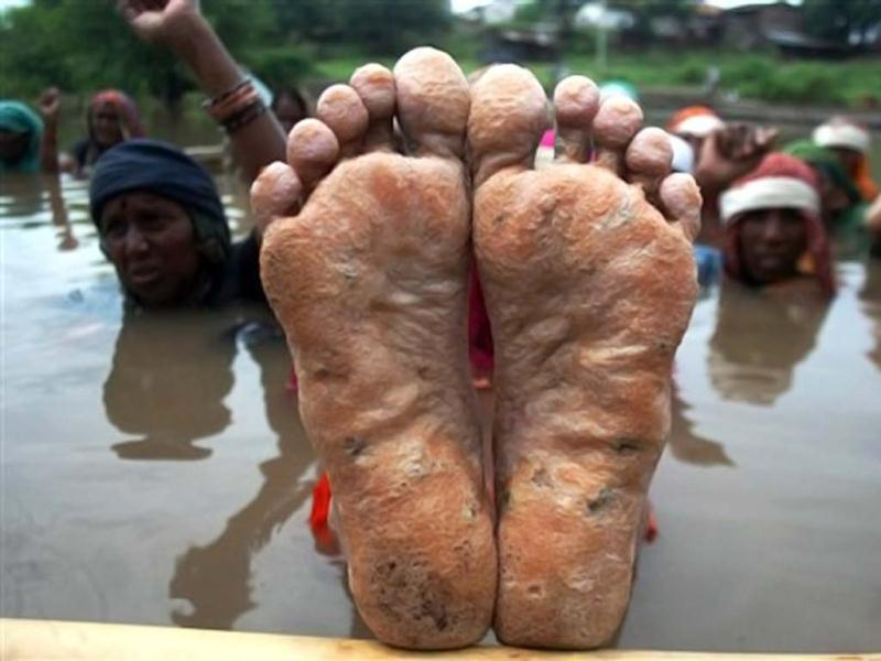 An NBA activist showing her feet during a previous jal satyagraha against the Sardar Sarovar Project. Credit: PTI/Files