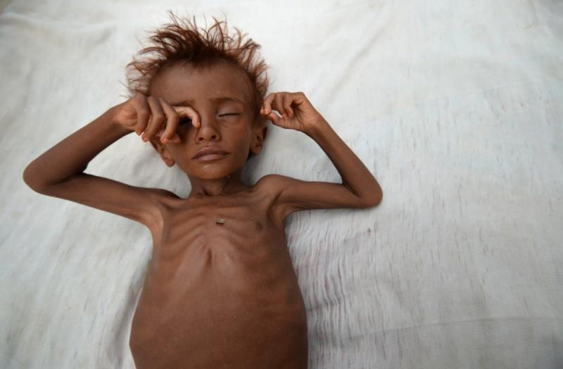 UN Urges Global Action to Save 20 Million People From Famine