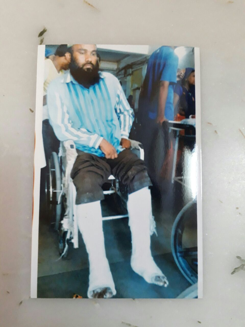Qureshi when his legs were fractured. Courtesy: Damayantee Dhar