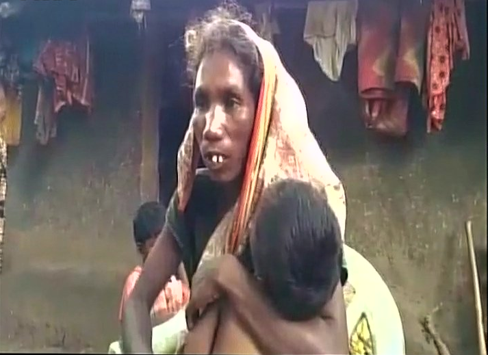 Jharkhand Girl Dies After Family's Ration Denied for No Aadhaar Link, BJP Blames Malaria