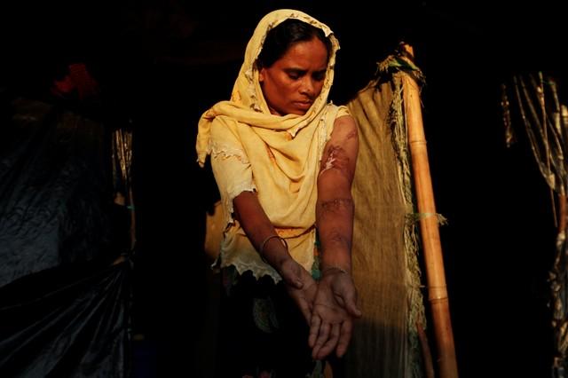 Rohingya refugee Anwara Begum, 36, poses for a photograph at Kutupalang refugee camp, near Cox's Bazar in Bangladesh, October 13, 2017. Credit: Reuters/Jorge Silva