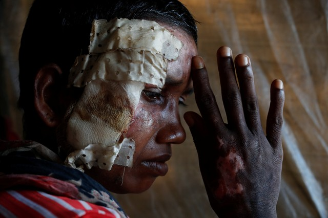 Bullets and Burns: Portraits of Injured Rohingya Refugees
