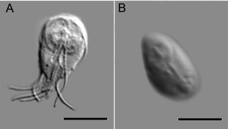 Trophozoid (left) and cyst (right) Credit: Essays In Biochemistry